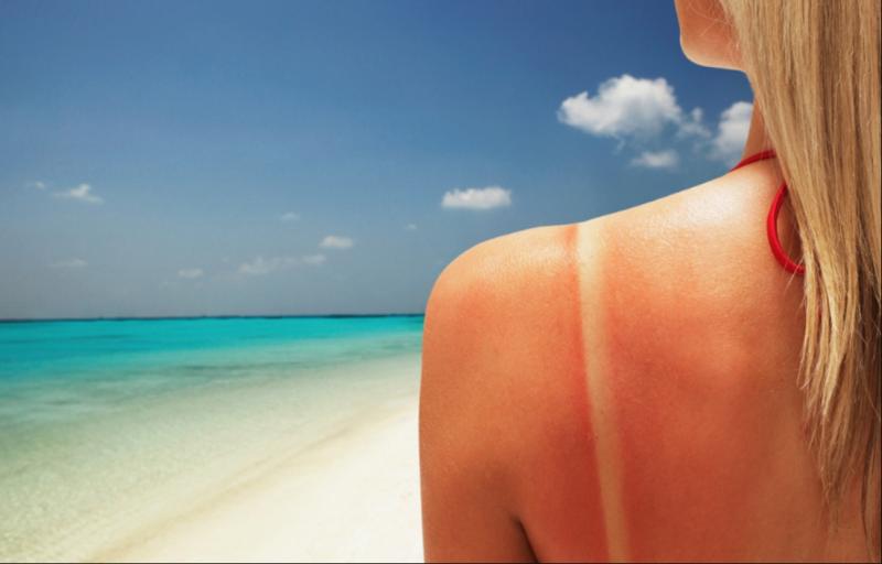 Como cuidar da pele após a exposição solar?